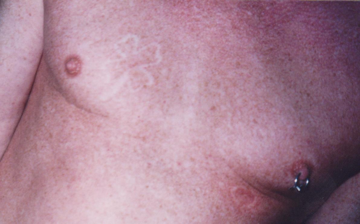Branding Body Pleasure Piercing